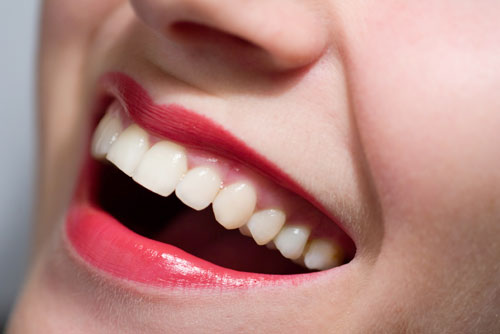 $1,000 Down Payment Matched Up To $1,000 on New Invisalign Cases at Lisa K. Zaborski DDS