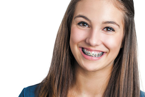 Braces As Low As $99/Month at Deluxe Dental
